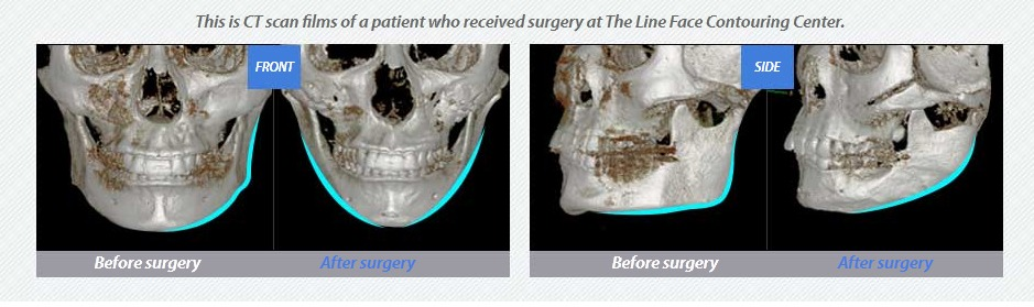 3D Square-Jaw Reduction-Image 2