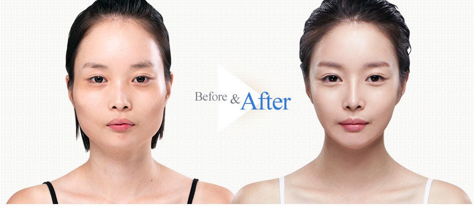 3D Square-Jaw Reduction-before after image 1
