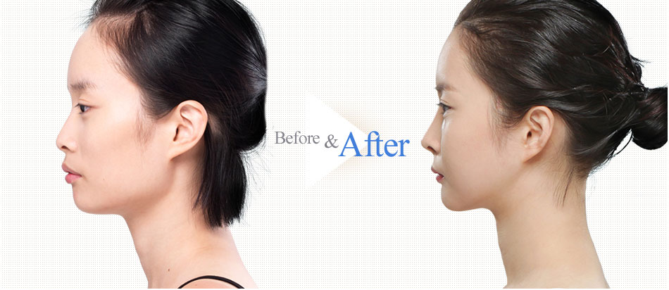 3D Square-Jaw Reduction-before after image 3