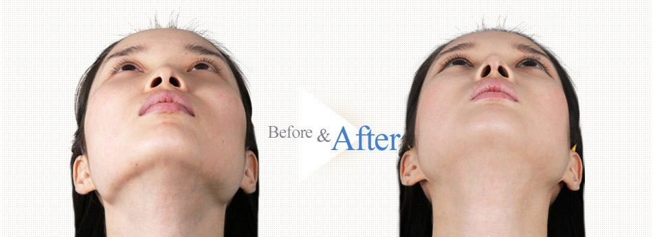 3D Square-Jaw Reduction-before after image 4