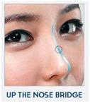 Barbie-Nose Rhinoplasty-image 1