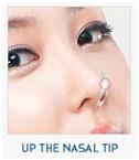 Barbie-Nose Rhinoplasty-image 2