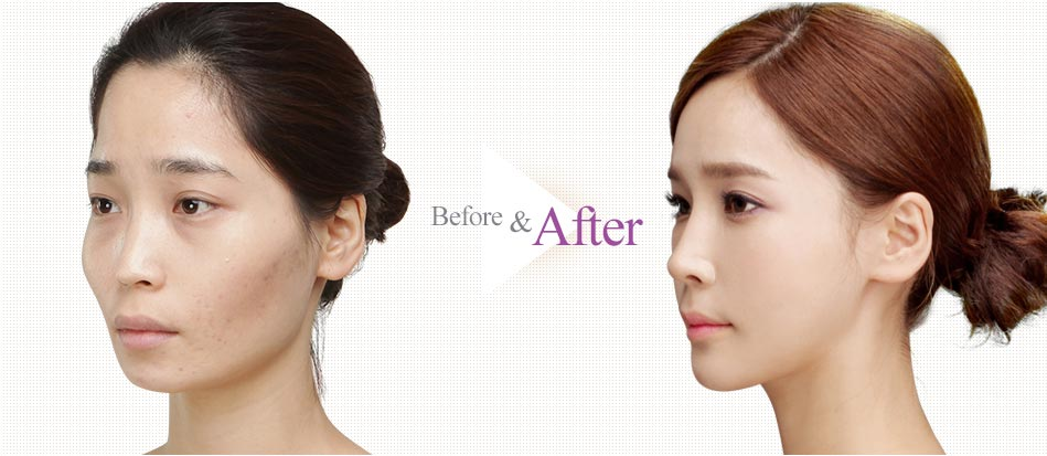 Barbie-Nose Rhinoplasty_before after1
