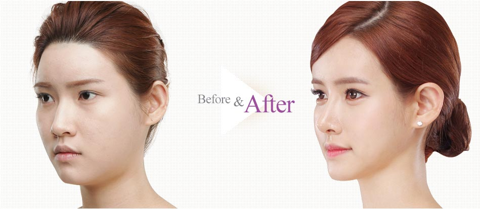 Barbie-Nose Rhinoplasty_before after2