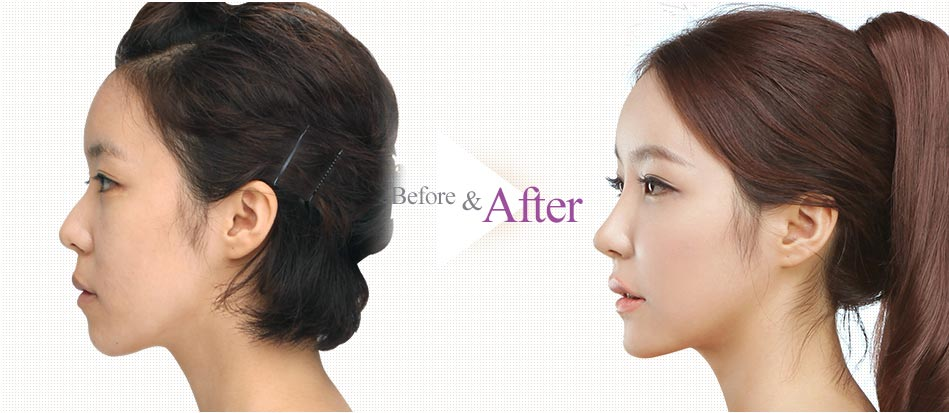 Barbie-Nose Rhinoplasty_before after3