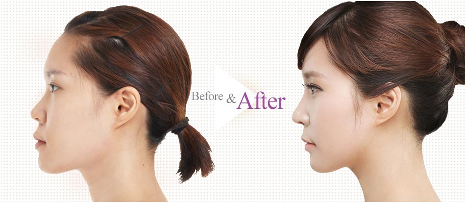 Barbie-Nose Rhinoplasty_before after4
