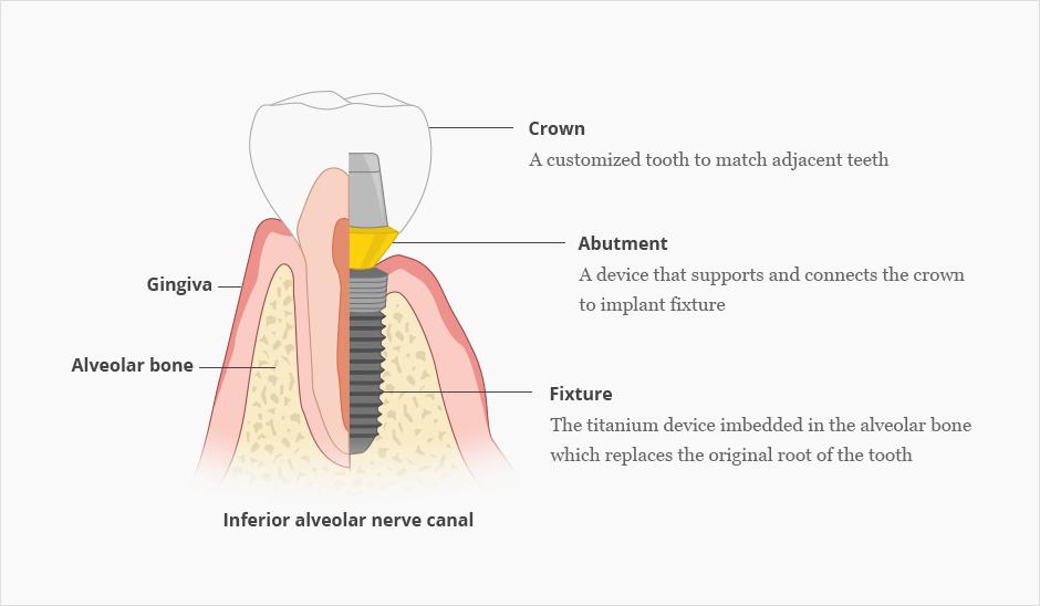 Dental Implant_image 1