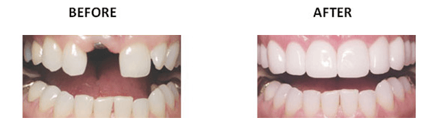 Dental Implant_image 11