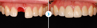 Dental Implant_image 6