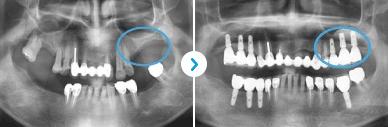 Dental Implant_image 7