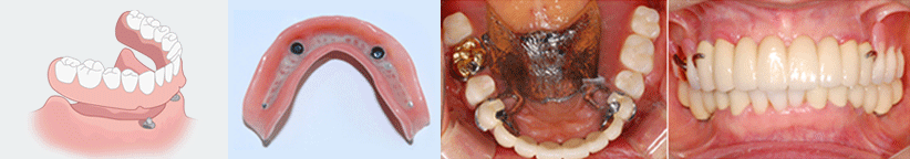 Dental Implant_image 8