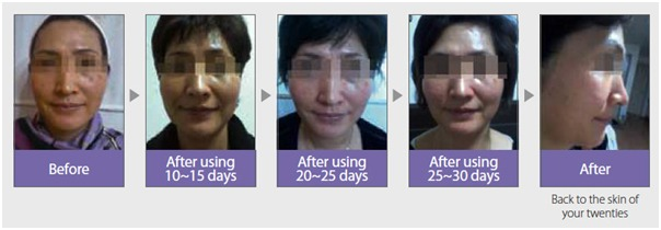 Magic Cell Anti-Aging-Image 10