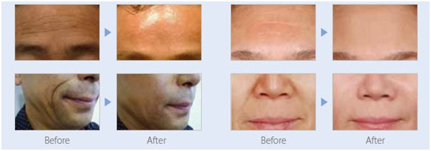 Magic Cell Anti-Aging-Image 5