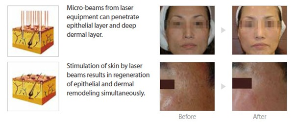 Magic Cell Anti-Aging-Image 7