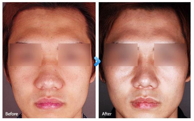 Nasal Tip & Bone Reduction-Image 1