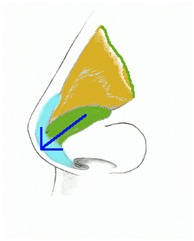 Figure showing nasal tip support structure