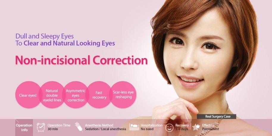 Non-incision Eye Correction-image 11