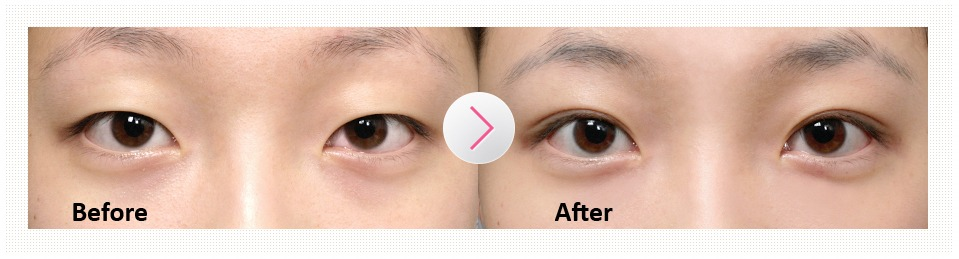 Non-incision Eye Correction-image 12