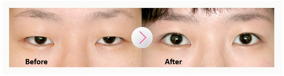 Non-incision Eye Correction-image 13