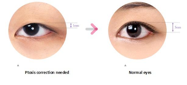 Non-incision-Eye-Correction-image-15
