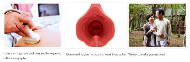 Postmenopausal Vaginal Plastic Surgery-Image4