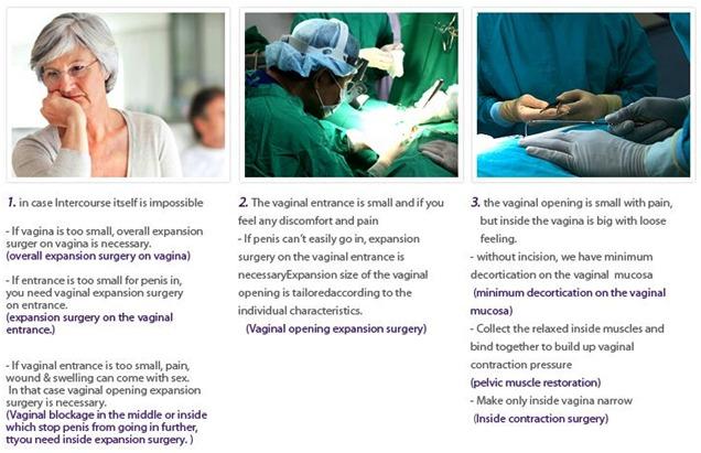 Postmenopausal Vaginal Plastic Surgery-Image5