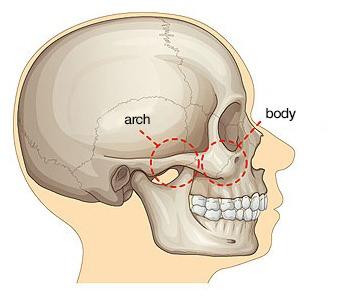 Quick Cheekbone Surgery-Image 1