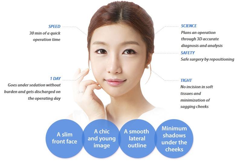 Quick Cheekbone Surgery-Image 6