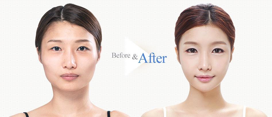 Quick Cheekbone Surgery-Image 7