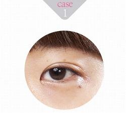 eye-correction-1