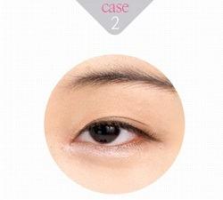 eye-correction-2