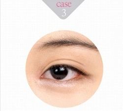 eye-correction-3