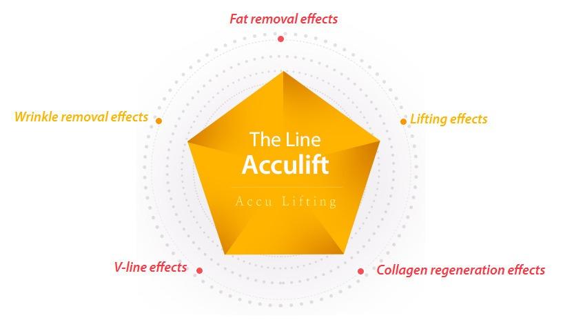 Accu Lifting_image 7
