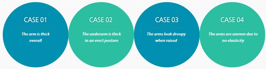 Arm Liposuction_image 2