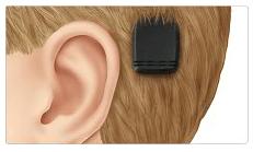 Bone Anchored hearing Aid (BAHA)_image 2