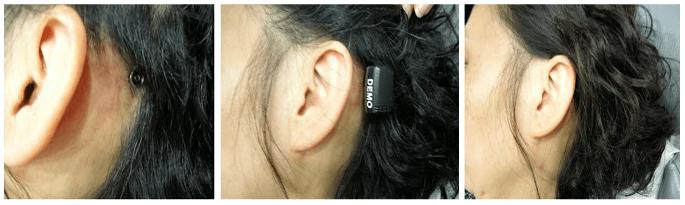 Bone Anchored hearing Aid (BAHA)_image 5