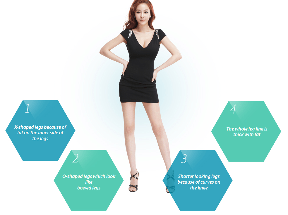 Chanel Line Liposuction_image 2