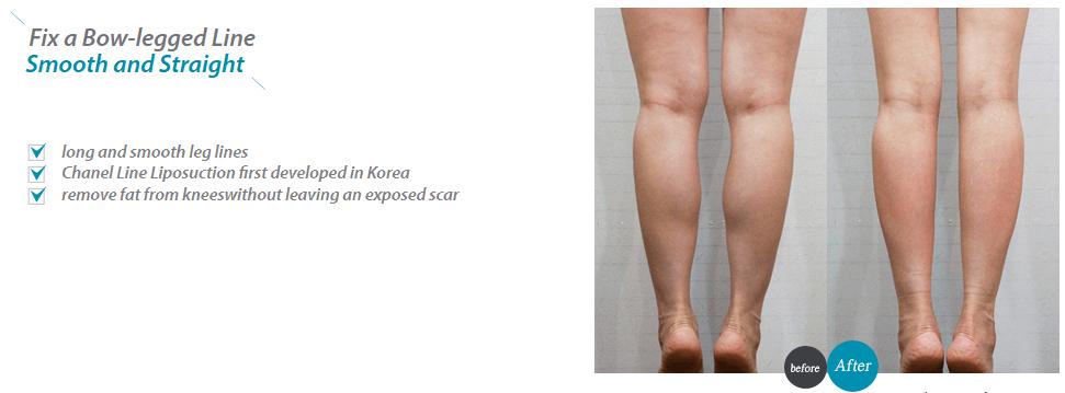 Chanel Line Liposuction_image 3