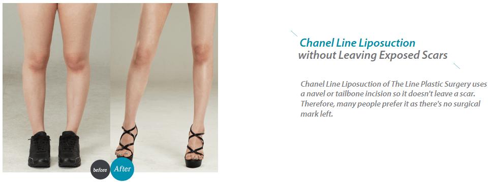 Chanel Line Liposuction_image 4