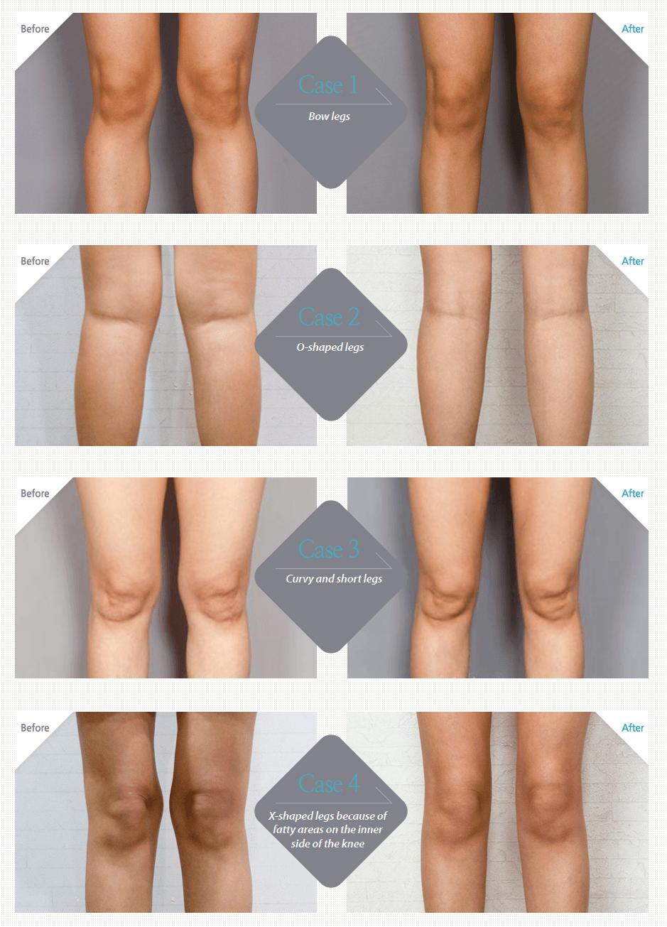 Chanel Line Liposuction_image 5