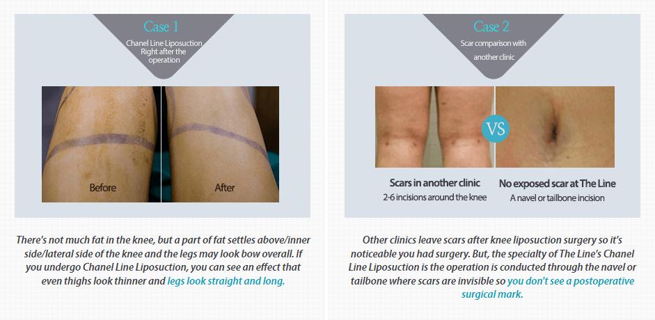 Chanel Line Liposuction_image 6