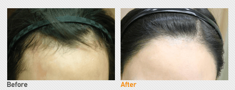 Hair Transplantation By Incision_Before & After Image 1