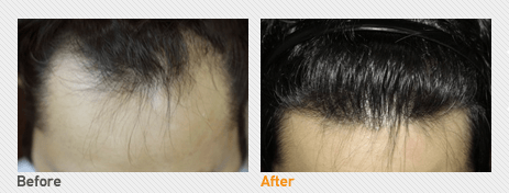 Hair Transplantation By Incision_Before & After Image 2