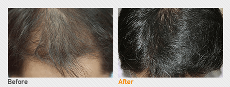 Hair Transplantation By Incision_Before & After Image 3