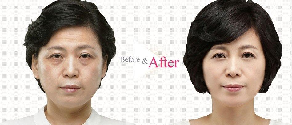 Lower Blepharoplasty Revision Eyelid Surgery-Image 116