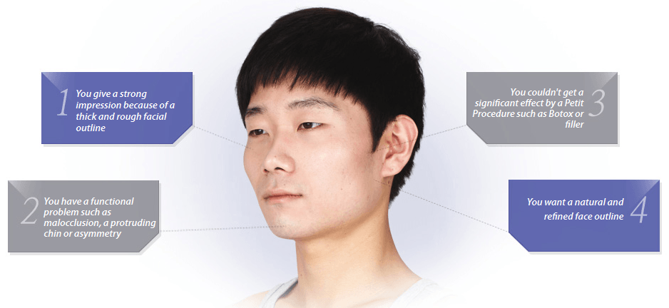 Male Face Contouring_Image 2
