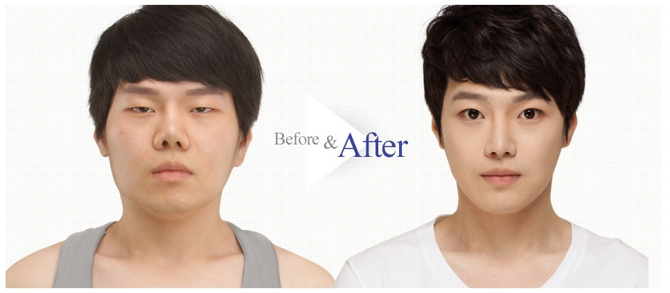Male Face Contouring_Image 5
