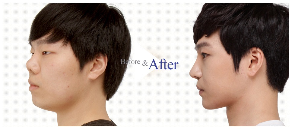 Male Nose Reshaping_image 5