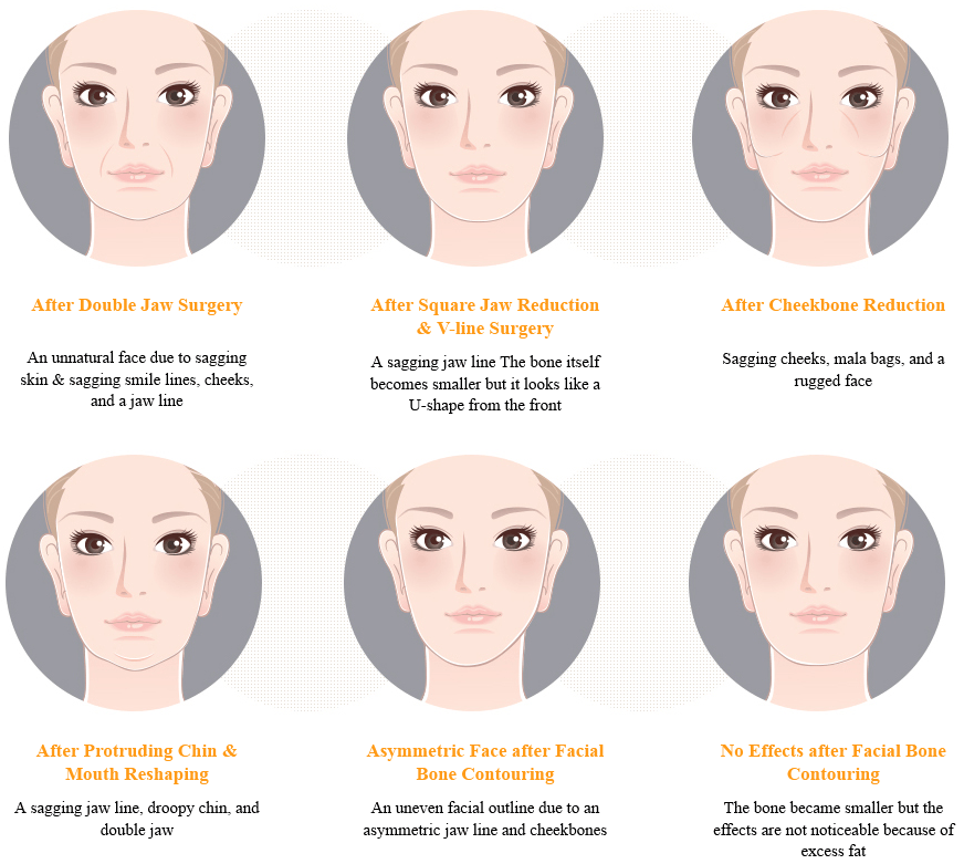 Sagging Skin Correction after Facial Bone Contouring_image 1