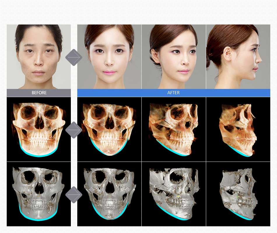 Jaw Reduction Surgery in Korea | Easta Medical
